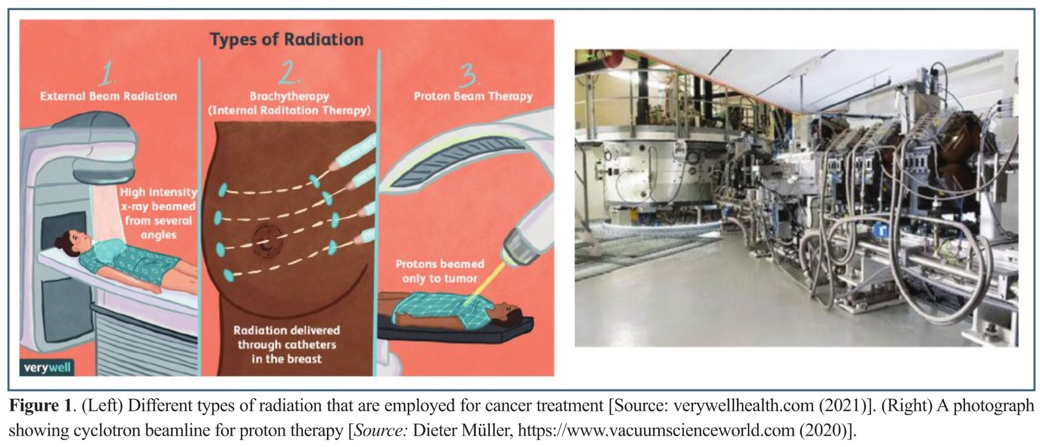 Heavy Ion Therapy: An Emerging Technology in Cancer Treatment